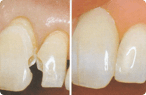Glendale Dental Fillings