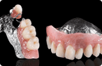 Dentures/Partials - Dentist in Glendale