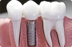 Glendale Dental Implants