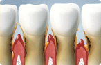 Glendale Periodontal Treatment