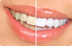 Teeth Whitening - Dentist in Glendale
