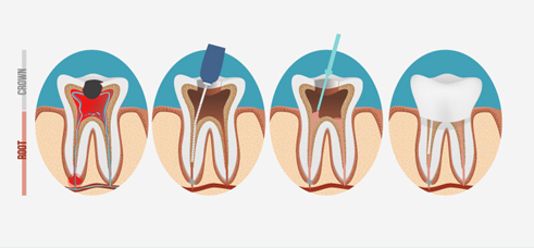 How Does Root Canal Therapy Work?
